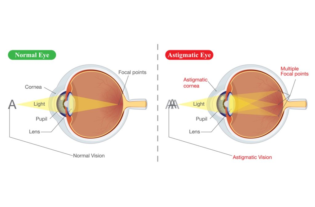Illustration of normal eye on the left and astigmatic eyes on the right.